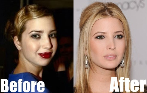 Ivanka Plastic Surgery Before and After.jpg